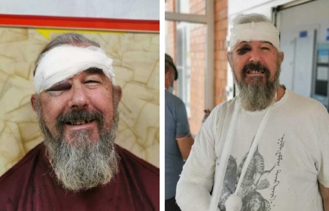 Пенсионер на Кубани заявил, что полицейские сломали ему руку за отказ надеть маску
